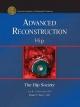 Advanced Reconstruction