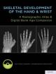 Skeletal Development of the Hand and Wrist: A Radiographic Atlas and Digital Bone Age Companion