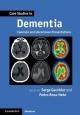 Case Studies in Dementia