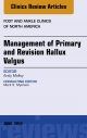 Management of Primary and Revision Hallux Valgus, An issue of Foot and Ankle Clinics of North America,