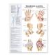 Understanding Arthritis Spanish