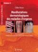 Manifestations Dermatologiques Des Maladies D''Organes