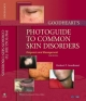Goodheart''s Photoguide to Common Skin Disorders