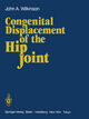 Congenital Displacement of the Hip Joint