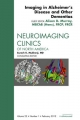 Imaging in Alzheimer''s Disease and Other Dementias, an Issue of Neuroimaging Clinics