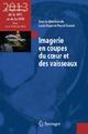 Imagerie En Coupes Du Coeur Et Des Vaisseaux