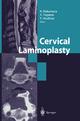 Cervical Laminoplasty