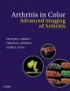 Arthritis in Color