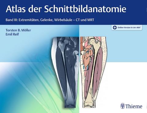 Atlas der Schnittbildanatomie, Band 3: Extremitäten,… von Torsten ...