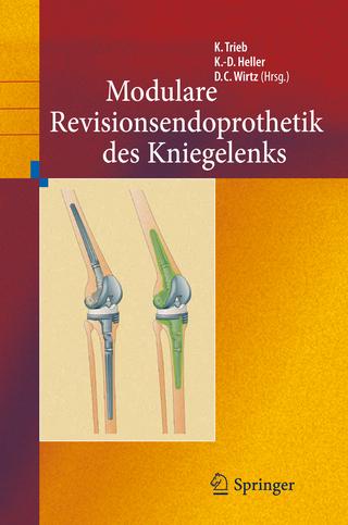 Revisionsendoprothetik des Kniegelenks - Klemens Trieb; Karl-Dieter Heller; Dieter Christian Wirtz