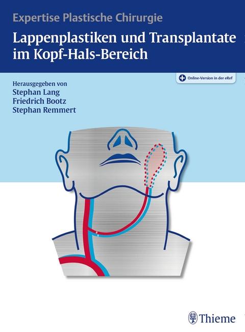 Lappenplastiken und Transplantate im Kopf-Hals-Bereich von Stephan H ...