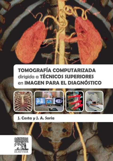 Computarizada download ebook axial tomografia