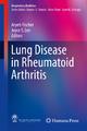 Lung Disease in Rheumatoid Arthritis - Aryeh Fischer; Joyce S. Lee