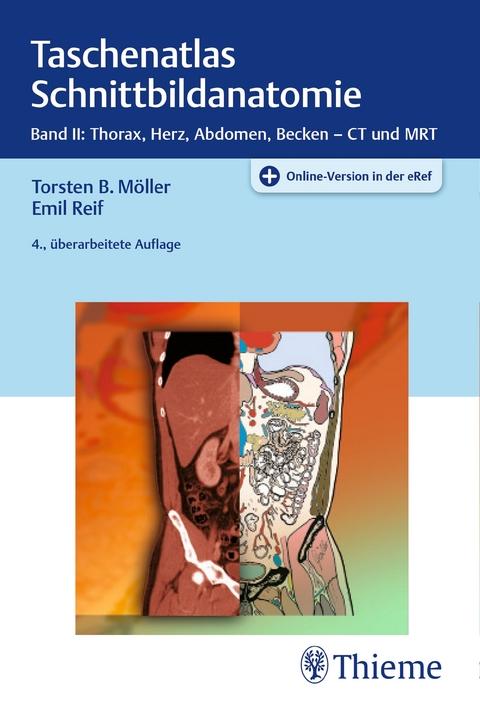 Taschenatlas Schnittbildanatomie von Torsten Bert Möller | ISBN 978 ...
