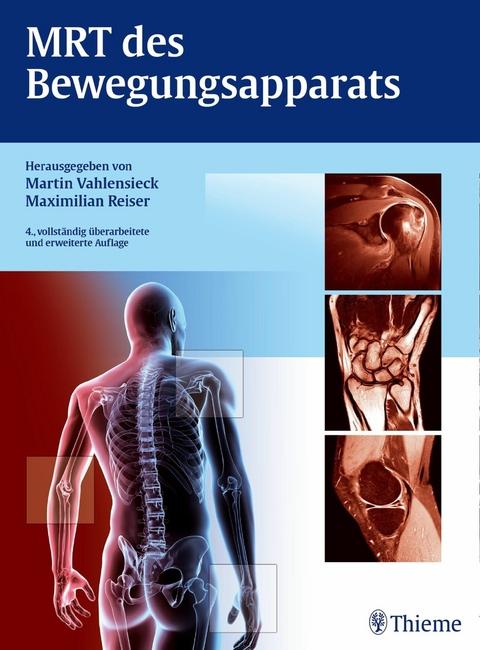 eBook: MRT des Bewegungsapparats von Martin Vahlensieck | ISBN 978-3 ...