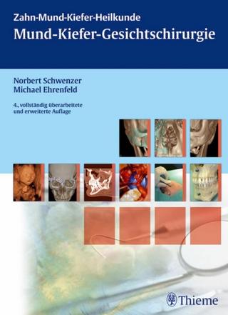 Mund-Kiefer-Gesichtschirurgie - György Irmey; Norbert Schwenzer; Michael Ehrenfeld; Anna-Luise Jordan; Hans Stieber